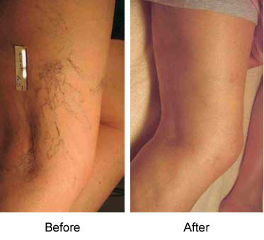 Spider Veins Removal Allure Md Spa Amp Wellness Center