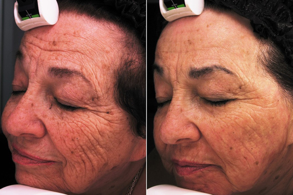 Co2 Laser Skin Resurfacing Co2re Treatment In Marlboro
