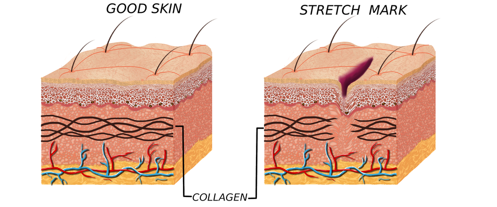 Stretch Marks Amp Scars Removal Treatment In Marlboro